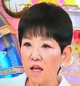【画像】和田アキ子は目の手術に失敗か?現在がまるで別人!
