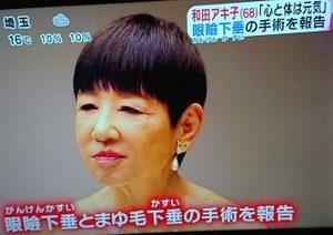 和田アキ子目 現在